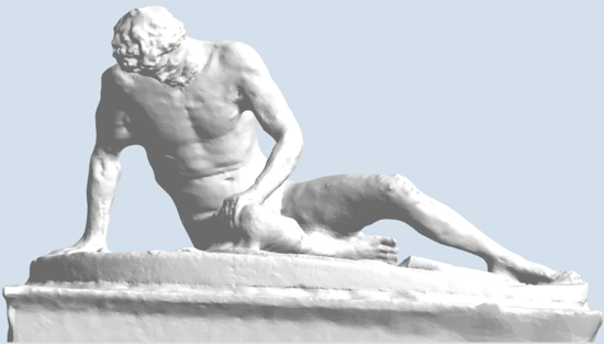 Picture of Dying Gaul